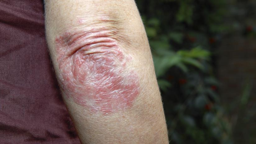 Shrot rastoropshi de la psoriasis las revocaciones