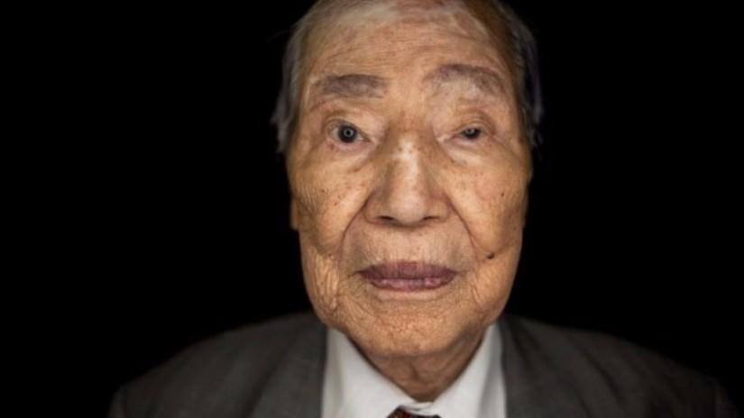 Fotos: así lucen los sobrevivientes de la bomba atómica de Hiroshima