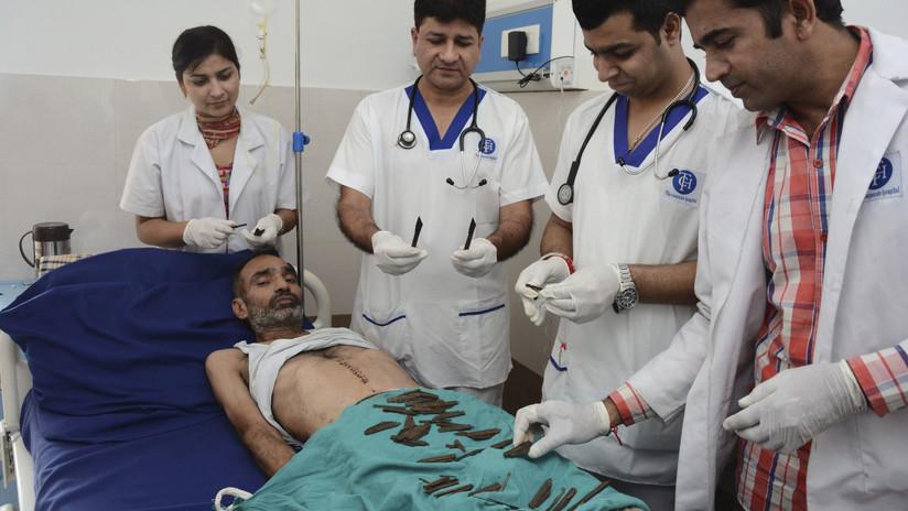 India: fue al hospital por un dolor abdominal y le extraen 40 cuchillos