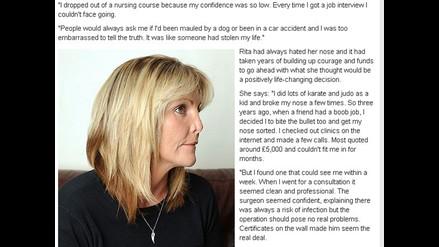 Mujer pierde media nariz por culpa de una mala cirugía estética