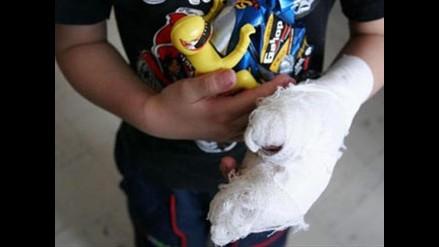 Iracundo padre de familia quemó mano de su hijo en Iquitos