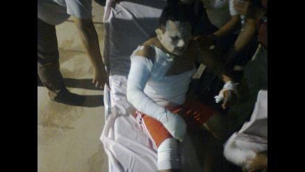 Paracas: Incendio en Hotel Hilton deja ocho heridos con quemaduras