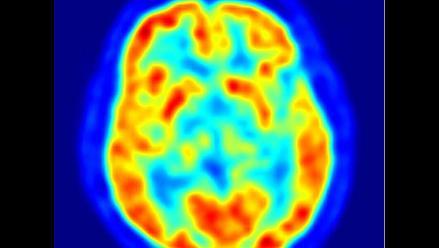 Una parte del cerebro humano funciona como Internet