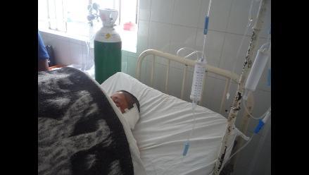 La Libertad: Fulminante rayo mutila oreja a campesina y la deja en coma