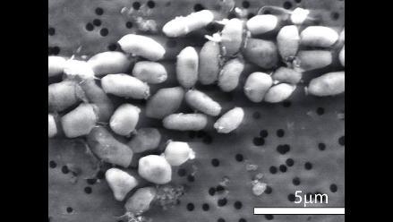 Demuestran poder del cobre para eliminar gérmenes resistentes a los antibióticos
