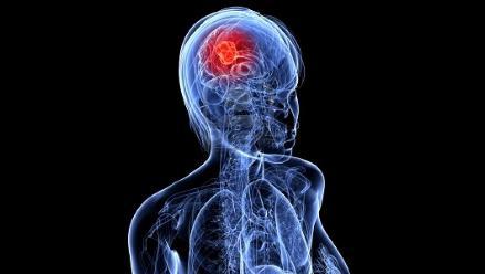 Españoles descubren molécula que frena el cáncer cerebral