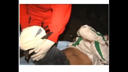 Arequipa: Hombre ebrio queda con pierna incrustada en reja metálica