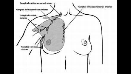 El cáncer de mama: cómo detectarlo y cómo afrontarlo