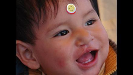 Campaña Caritas Felices: Dile no al labio leporino y al paladar hendido