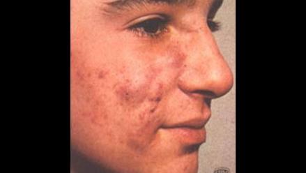 El acné: un problema de adolescentes