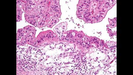Descubren nuevos genes del cáncer de ovario