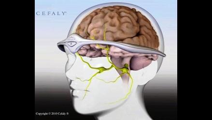 La neuroestimulación: una alternativa contra la migraña