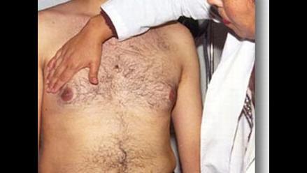 Perú registra 50 casos de cáncer de mama en varones al año