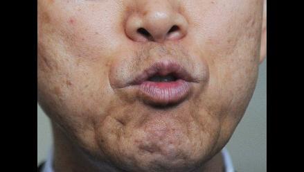 Prevenga el cáncer de boca con un autoexamen