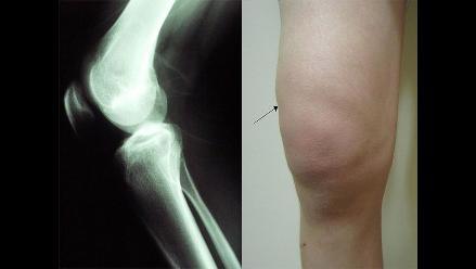 Prueban con éxito un nuevo tratamiento contra la artrosis