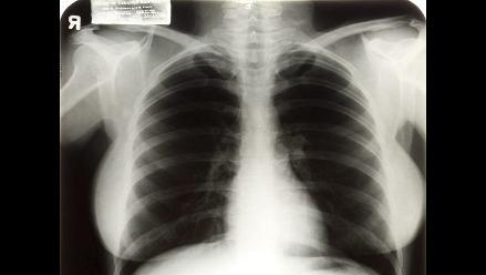 El ocho de noviembre descubrieron los rayos X