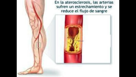 Estudio determina que tres de cada diez peruanos sufren arteriosclerosis