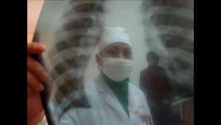Perú tiene el 37% de casos de tuberculosis multi-resistente de América