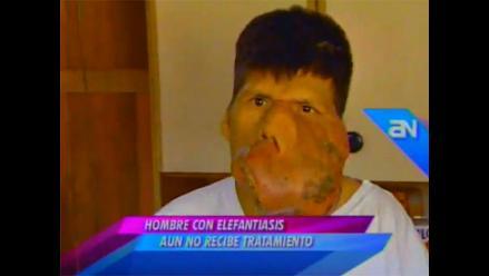 Sufre por enorme tumor en el rostro y clama urgente ayuda