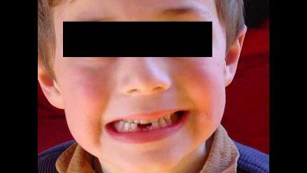 Factores de riesgo de caries dental en la infancia