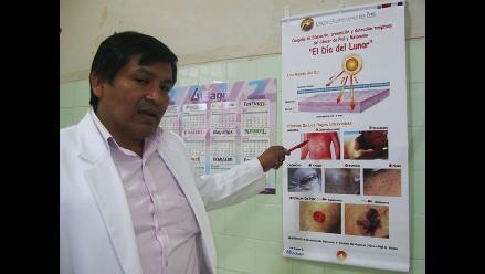Casos de cáncer a la piel se incrementan en un 30% en Lambayeque