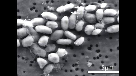 Bacteria resistente a antibiótico ha pasado de los animales a los humanos