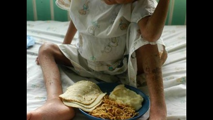 La continuidad y discontinuidad de los proyectos de salud pública en el Perú