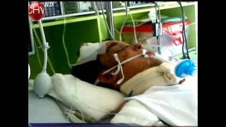 Chile: Neonazis golpean brutalmente a joven por ser gay