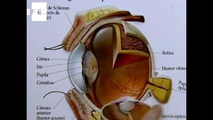 Glaucoma, una enfermedad que puede quitarle la visión a las personas