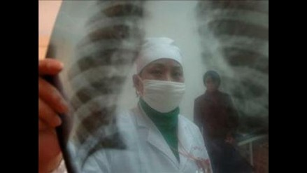 Situación de tuberculosis en el mundo ´es peor que hace 30 años´