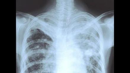 OMS: Casos de tuberculosis resistente a medicamentos van en aumento