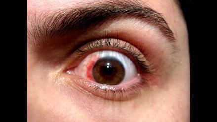 El síndrome de ojo seco un trastorno que afecta a jóvenes y adultos