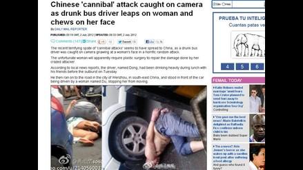 China: Mujer queda con la cara destrozada tras ataque caníbal