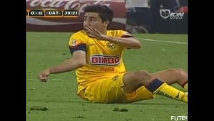 Efraín Juárez del América de México sufrió terrible lesión en el codo