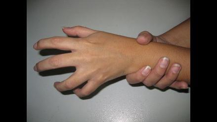 Novedosa terapia revierte los síntomas de la artritis reumatoide