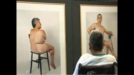 Muestra fotográfica reivindica memoria de víctimas de poliomielitis