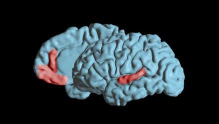 Descubren áreas del cerebro involucradas en pronunciación de vocales