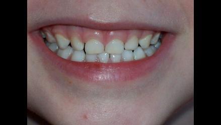 ¿Por qué se oscurecen los dientes  85cf2ba80146