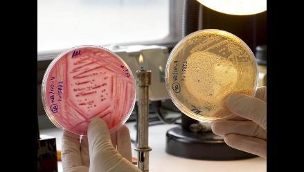 Científicos trabajan en nueva vacuna contra el ántrax