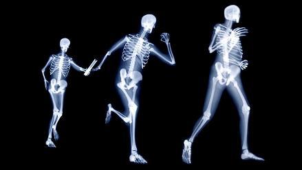 ¿Cuánto debe durar el tratamiento contra la osteoporosis?
