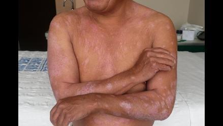 Encuentran relación entre la gingivitis y la psoriasis