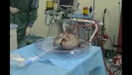 Pulmones sobreviven 10 horas fuera del cuerpo humano sin sufrir daños