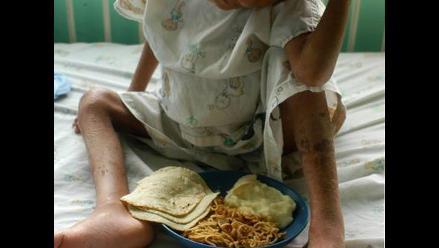 Día mundial de la alimentación: 50% de niños sufren de desnutrición
