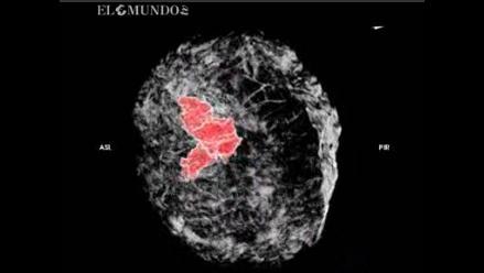 Un escáner para ver el cáncer de mama en tres dimensiones