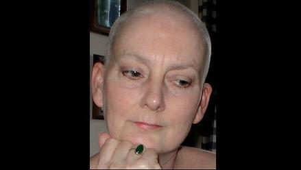 Soporte familiar enfrenta los cambios en el tratamiento del cáncer de mama