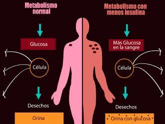 Infografía: Conozca los síntomas y tipos de diabetes
