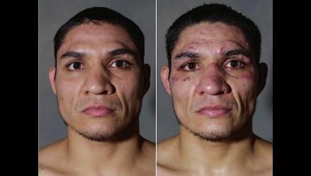 Howard Schatz retrata a boxeadores antes y después de pasar por el ring
