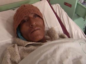 Arequipa: Hombre con pene cercenado fue operado