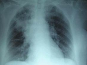 Fibrosis quística: Caminata por una enfermedad pediátrica poco conocida