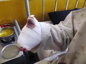 Trujillo: Con dinamita extorsionadores destrozan mano a joven